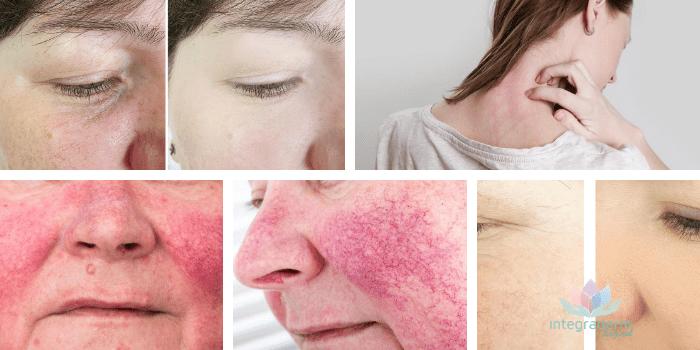 Dermatologia Elche Rosacea, Que es la rosacea?