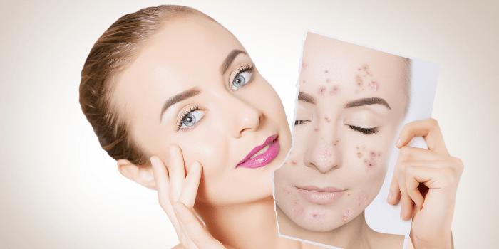 Dermatologia Elche, Problemas de piel y acné, Dermatologo