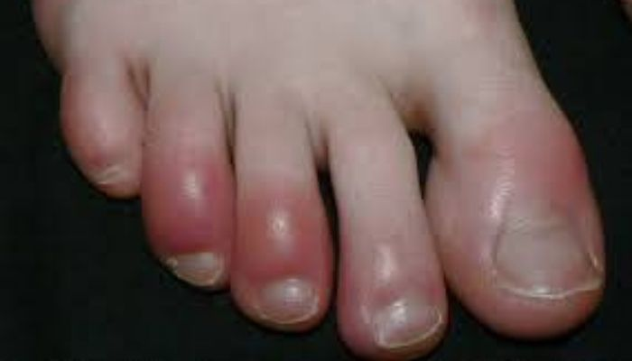 CÓMO AFECTA EL CORONAVIRUS A TU PIEL - integraderm - dermatologa laura moya (1)