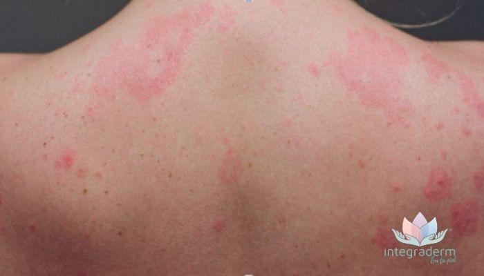 CÓMO AFECTA EL CORONAVIRUS A TU PIEL - integraderm - dermatologa laura moya