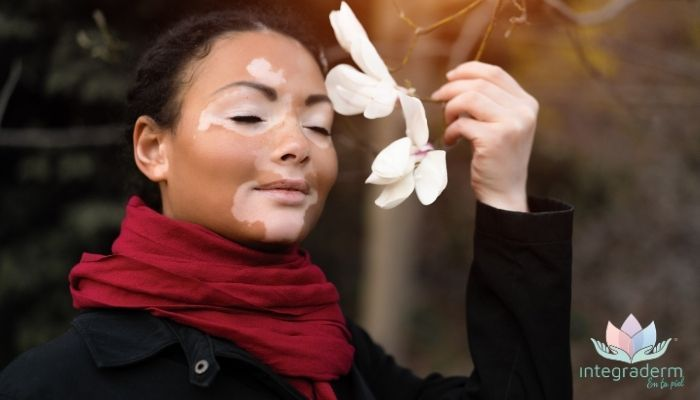 ¿que es vitiligo?, tratamiento curacion, contactenos